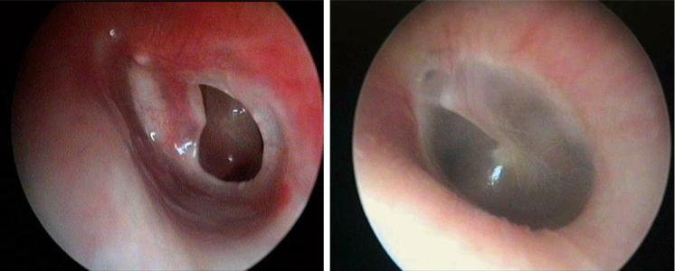 Perforazione dii un timpano trattato con chirurgia rigenerativa