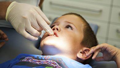 Malocclusione dentale rischi respirazione bambini