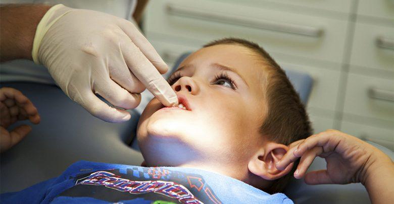Photo of Malocclusione dentale, i rischi per la respirazione dei bambini