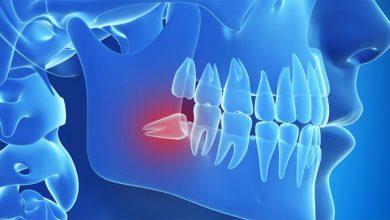 Denti inclusi inclusione dentaria