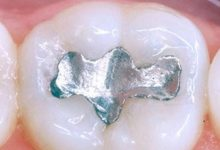Amalgama dentaria