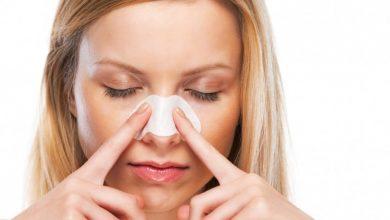 Sindrome del naso vuoto