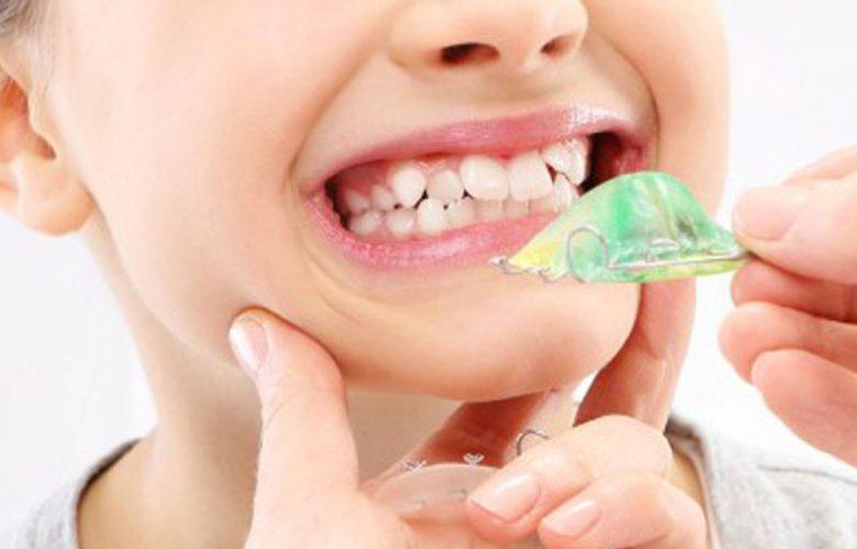 Terapia ortodontica