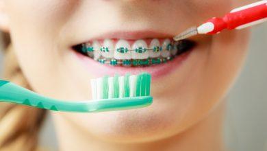 Photo of Pulizia dispositivi ortodontici: come mantenere una corretta igiene orale con l'apparecchio