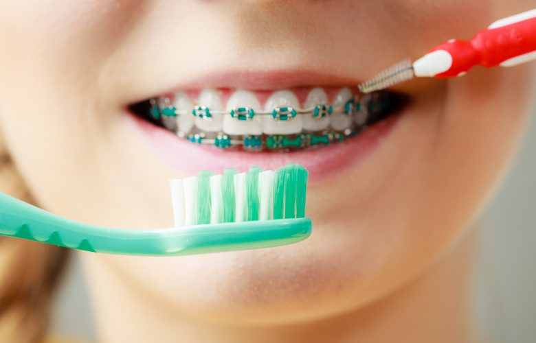 Pulizia dispositivi ortodontici