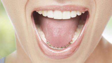Ortodonzia linguale, i vantaggi estetici e funzionali dell'apparecchio invisibile
