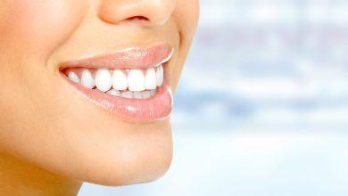 Photo of Odontoiatria estetica, come prendersi cura del proprio sorriso con le faccette dentali