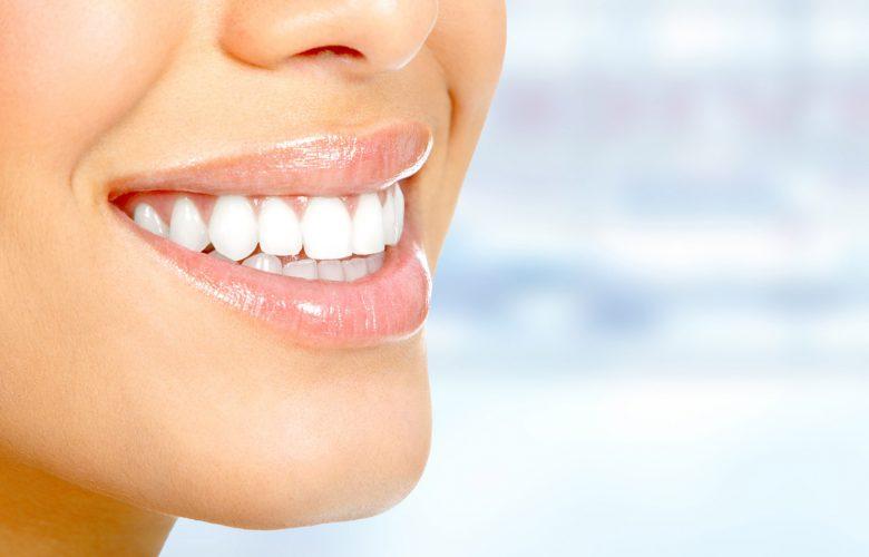 Odontoiatria estetica, come prendersi cura del proprio sorriso con le faccette dentali