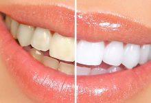 Photo of Sbiancamento dei denti: falsi miti, vantaggi e rischi dei trattamenti