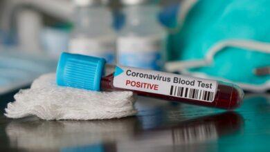 Photo of Coronavirus, l'Italia dichiara lo stato di emergenza sanitaria per sei mesi