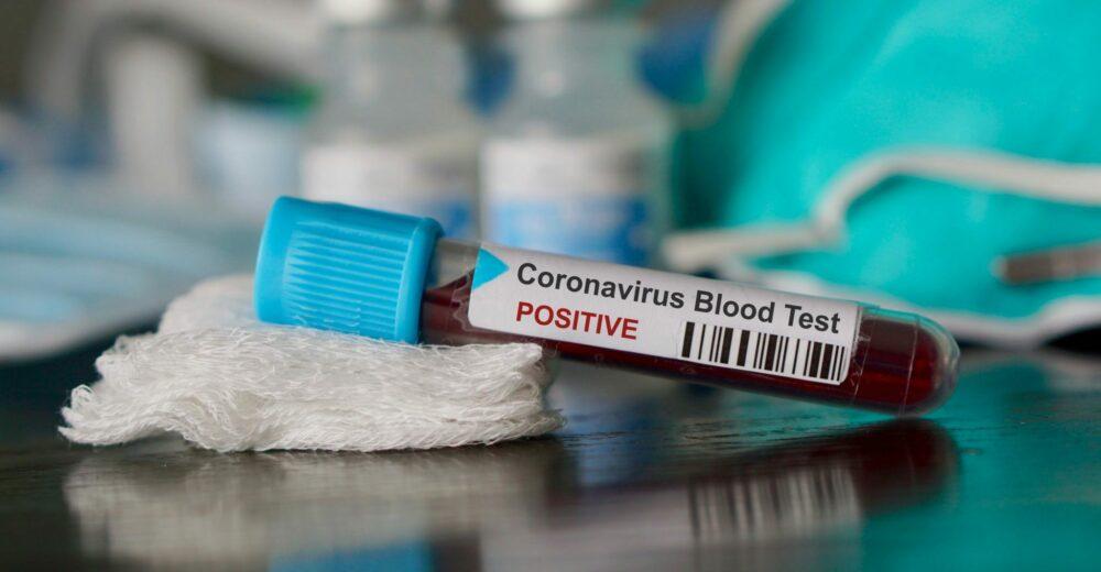 Coronavirus, l'Italia dichiara lo stato di emergenza sanitaria per sei mesi