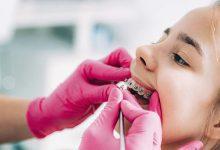 Photo of Malocclusioni dentali: la prevenzione inizia da bambini