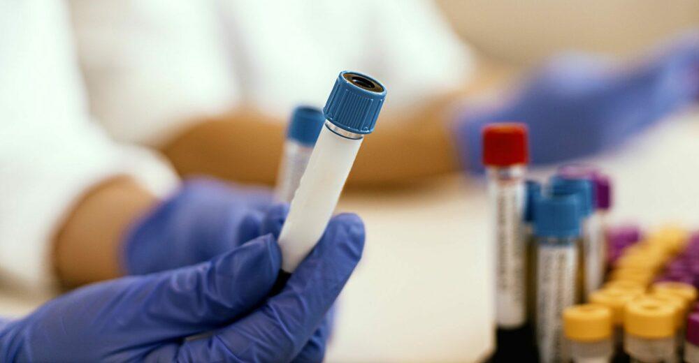 Test sierologici e «patente di immunità» per ripartire