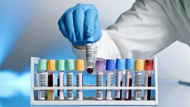 Photo of La cura con il plasma funziona? «Sì, ma ci sono dei limiti e la ricerca continua»