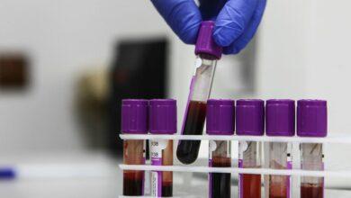 Photo of Ci sono gruppi sanguigni più esposti di altri al coronavirus?