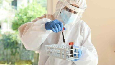Photo of «Gli anticorpi prodotti dai guariti diminuiscono rapidamente in tre mesi»
