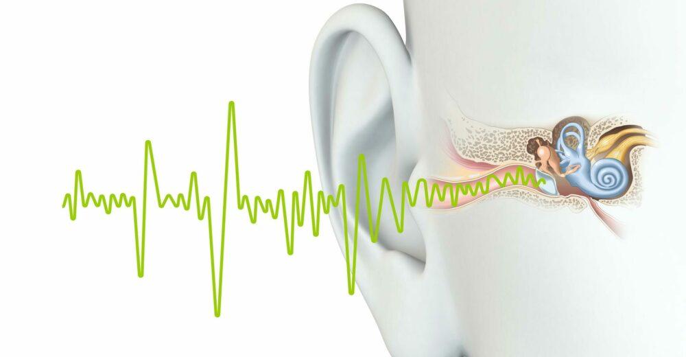 Come trattare l'acufene: la relazione tra idrope dell'orecchio interno e sindrome di Menière
