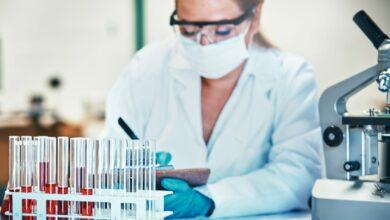 Photo of Risultati dei test sierologici: «Anticorpi su 2,5 milioni di italiani, 6 volte in più dei positivi»