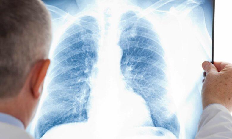 Photo of Coronavirus, il 25% dei pazienti sviluppa danni permanenti ai polmoni