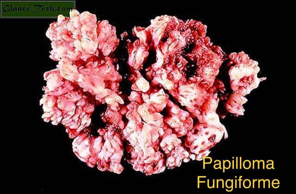 Papilloma nasale immagini. Papilloma virus uomo condilomi - Papilloma nasale